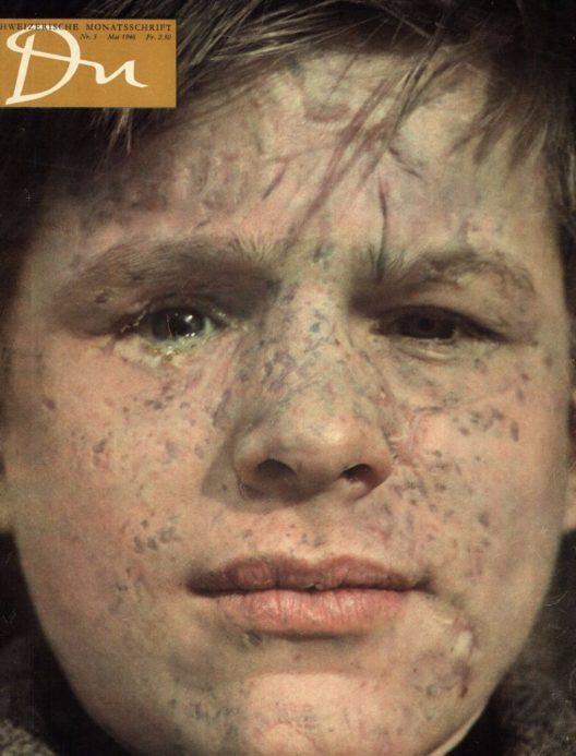 «du»-Titelblatt der Ausgabe Mai 1946. Der Fotograf Walter Bischof porträtiert das kriegsversehrte Europa. Das Bild zeigt einen Jungen mit Verletzungen von Granatsplittern im Gesicht. (Bild: © Du Kulturmedien AG)